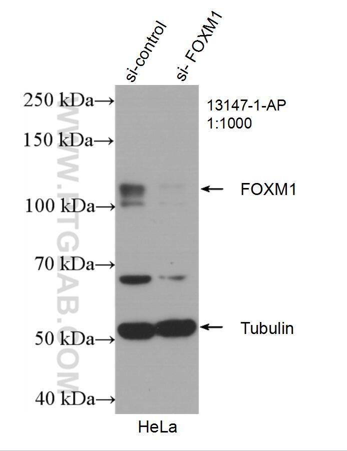 FOXM1 Antibody in Western Blot (WB)