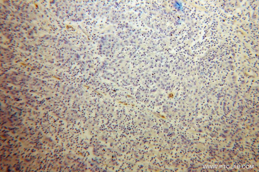 PSMA/GCPII Antibody in Immunohistochemistry (Paraffin) (IHC (P))