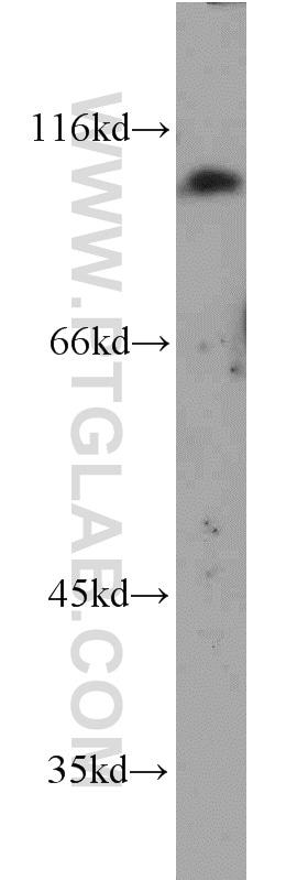 PSMA/GCPII Antibody in Western Blot (WB)