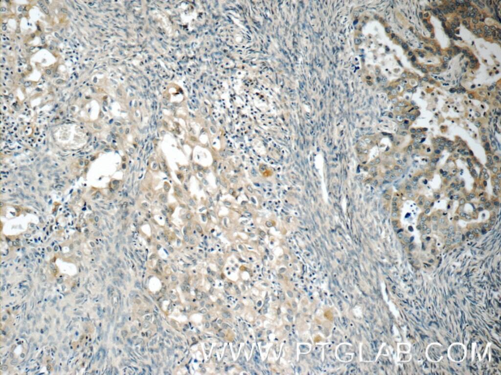 RAB25 Antibody in Immunohistochemistry (Paraffin) (IHC (P))
