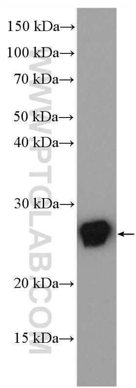 RAB25 Antibody in Western Blot (WB)