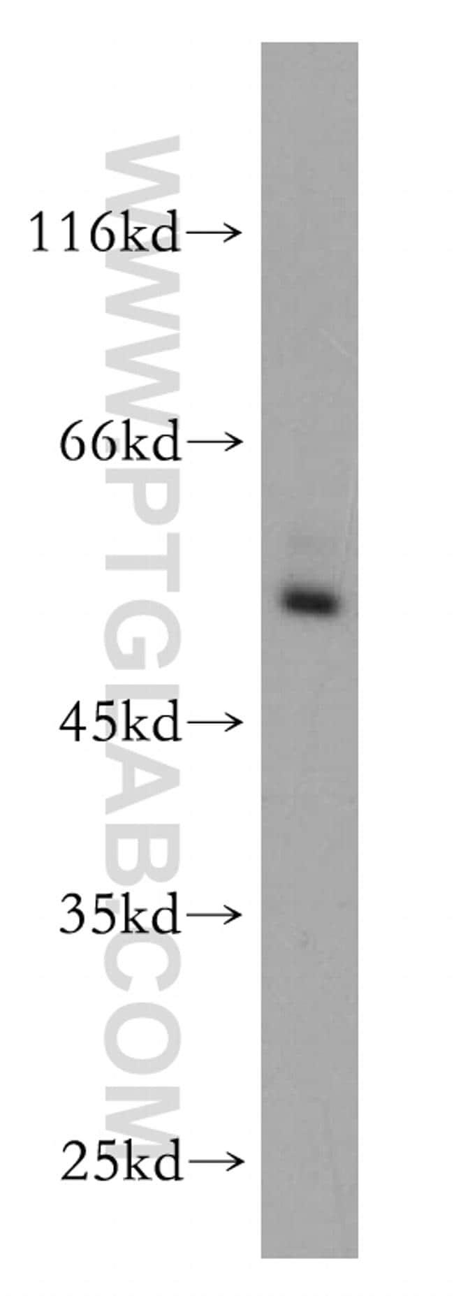 RORC Antibody in Western Blot (WB)