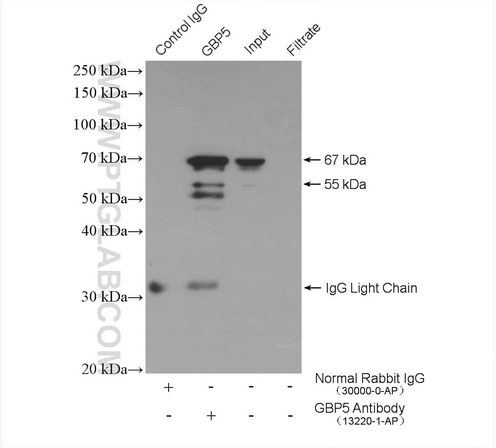GBP5 Antibody in Immunoprecipitation (IP)