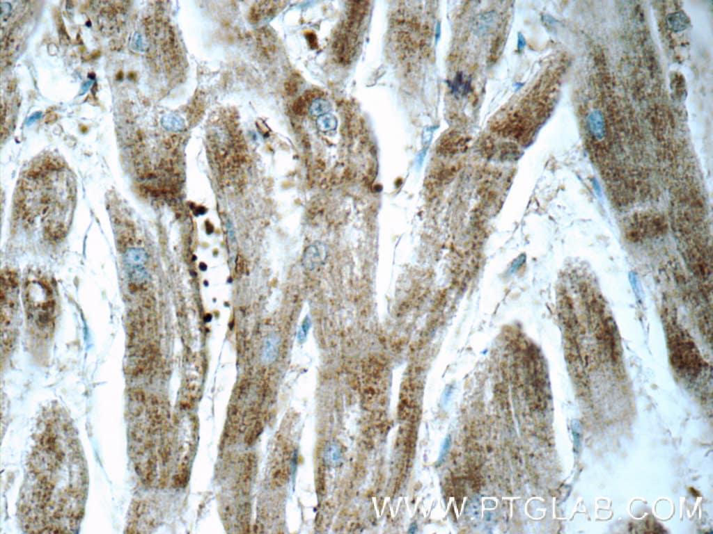ARSB Antibody in Immunohistochemistry (Paraffin) (IHC (P))