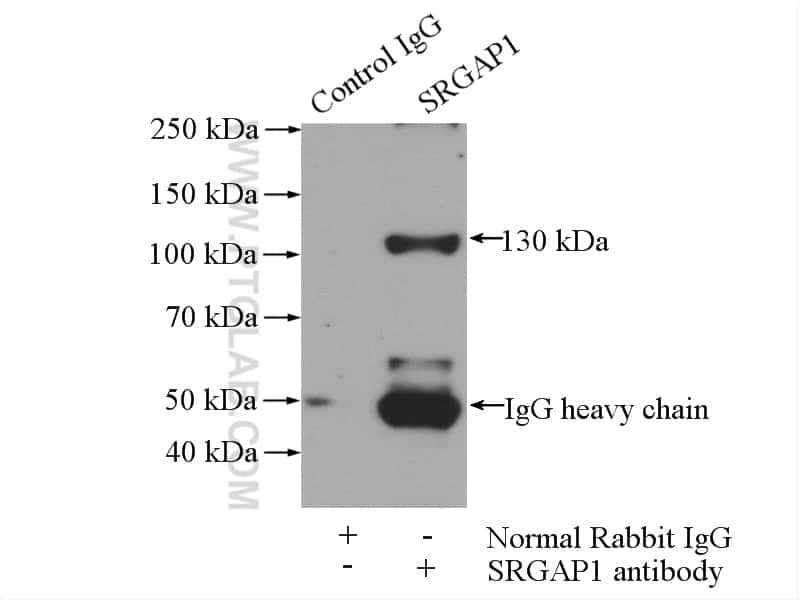 SRGAP1 Antibody in Immunoprecipitation (IP)