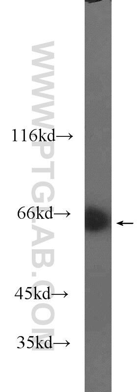 MLXIPL Antibody in Western Blot (WB)