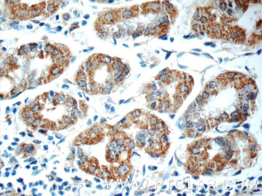 ADA Antibody in Immunohistochemistry (Paraffin) (IHC (P))