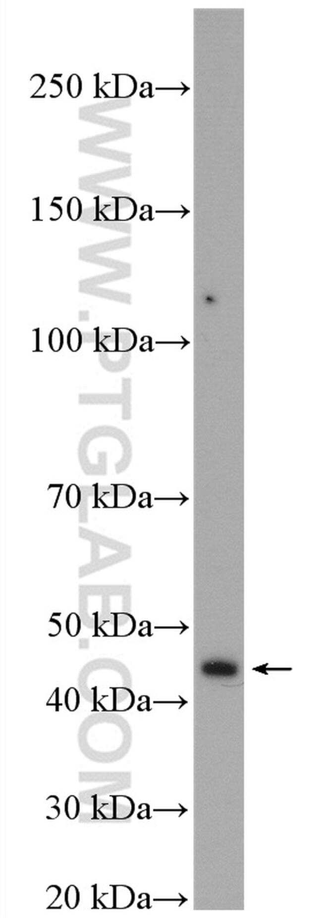TBRG1 Antibody in Western Blot (WB)