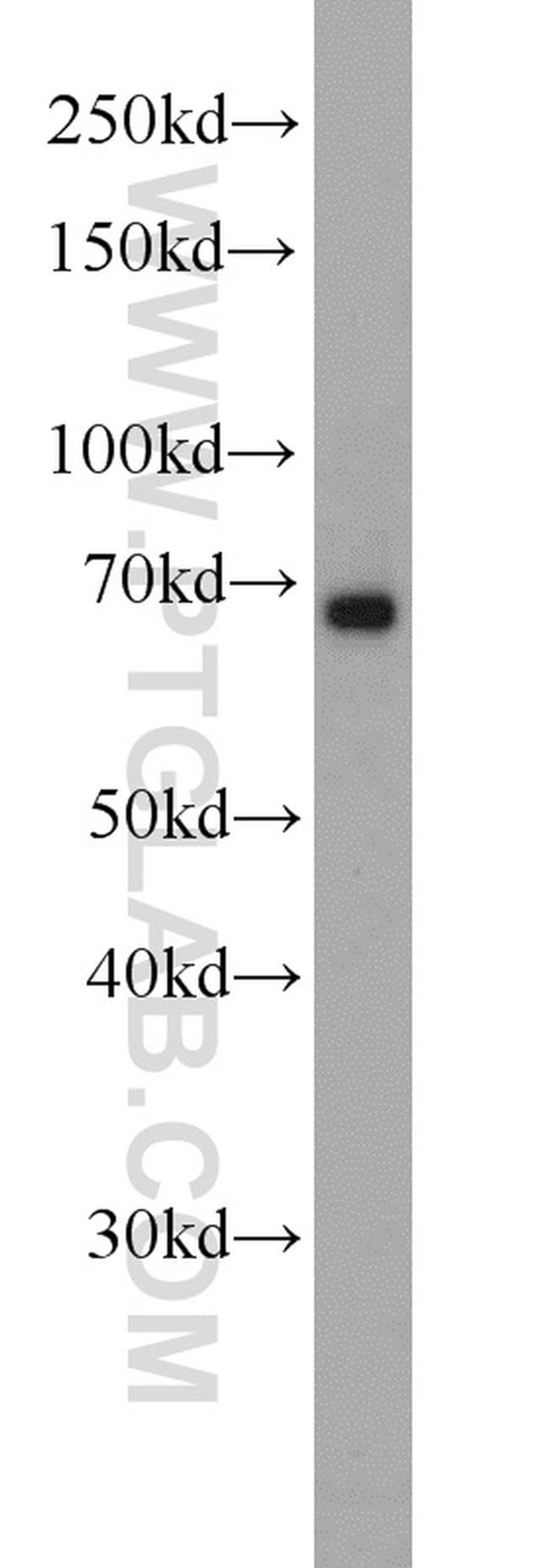 Glycerokinase Antibody in Western Blot (WB)