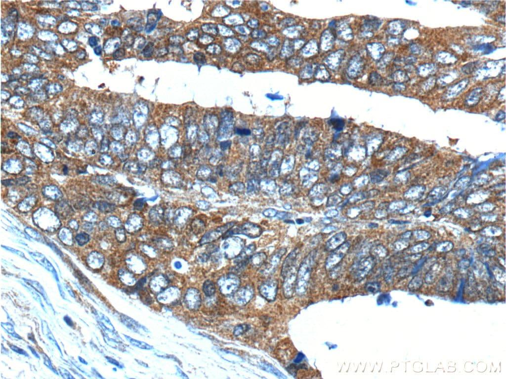 HSPH1 Antibody in Immunohistochemistry (Paraffin) (IHC (P))