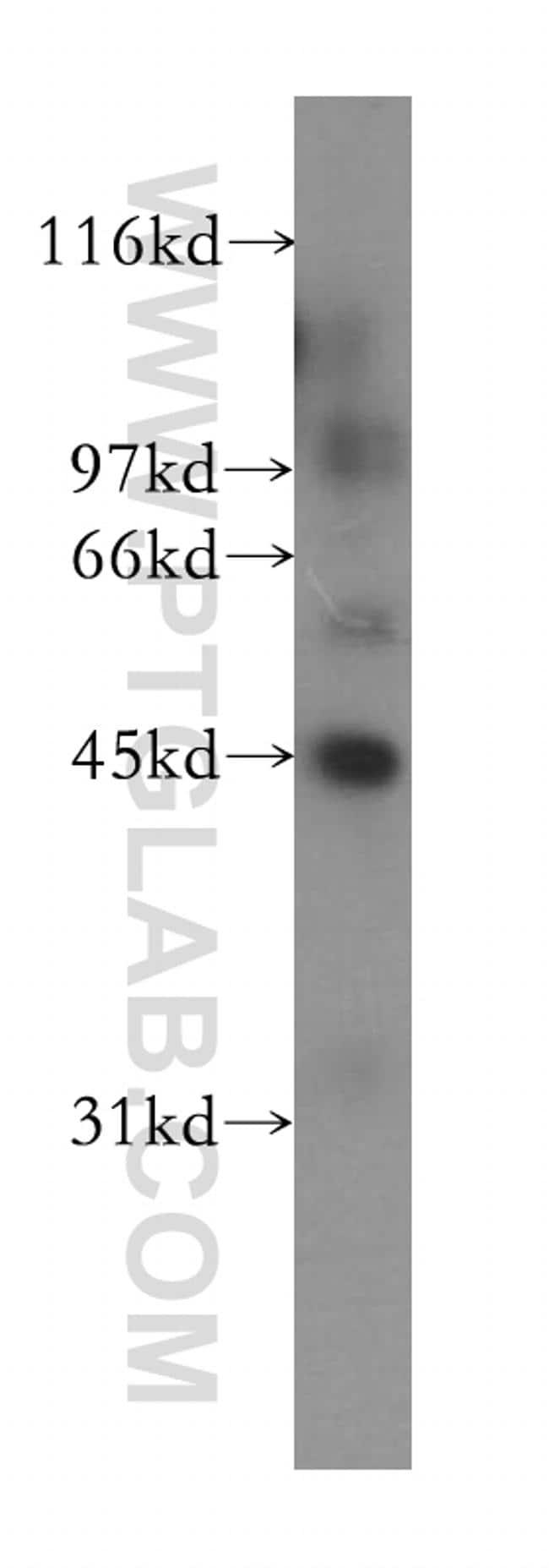 IHH Antibody in Western Blot (WB)