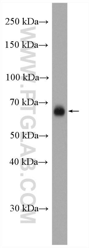 CD86 Antibody in Western Blot (WB)