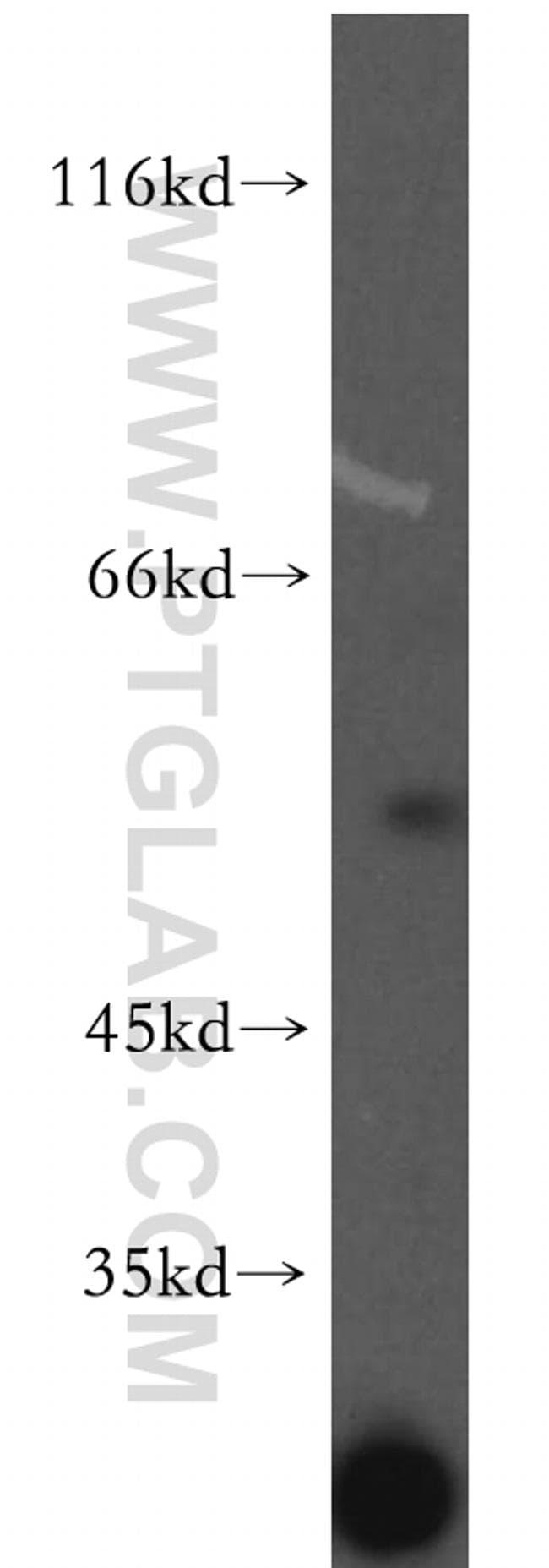 PDP2 Antibody in Western Blot (WB)