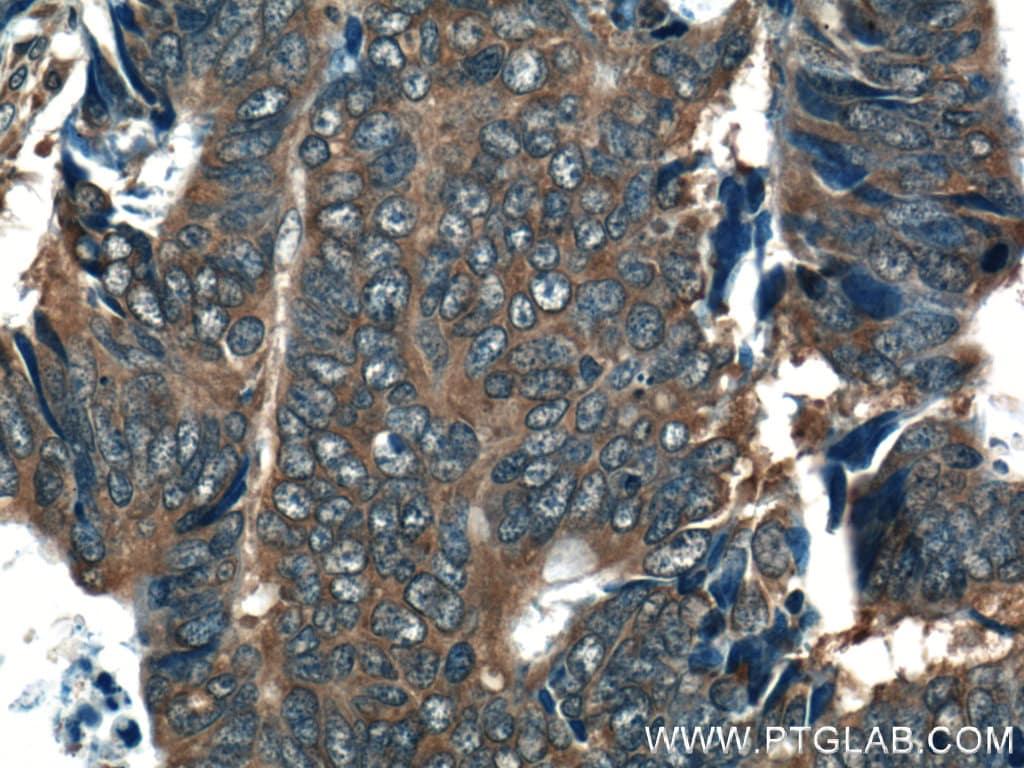 RAB27B Antibody in Immunohistochemistry (Paraffin) (IHC (P))