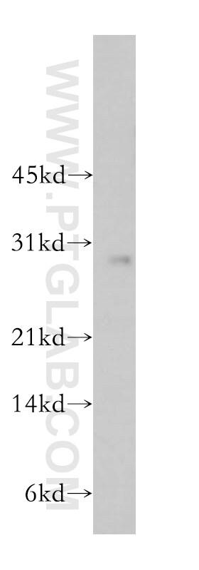 RAB27B Antibody in Western Blot (WB)