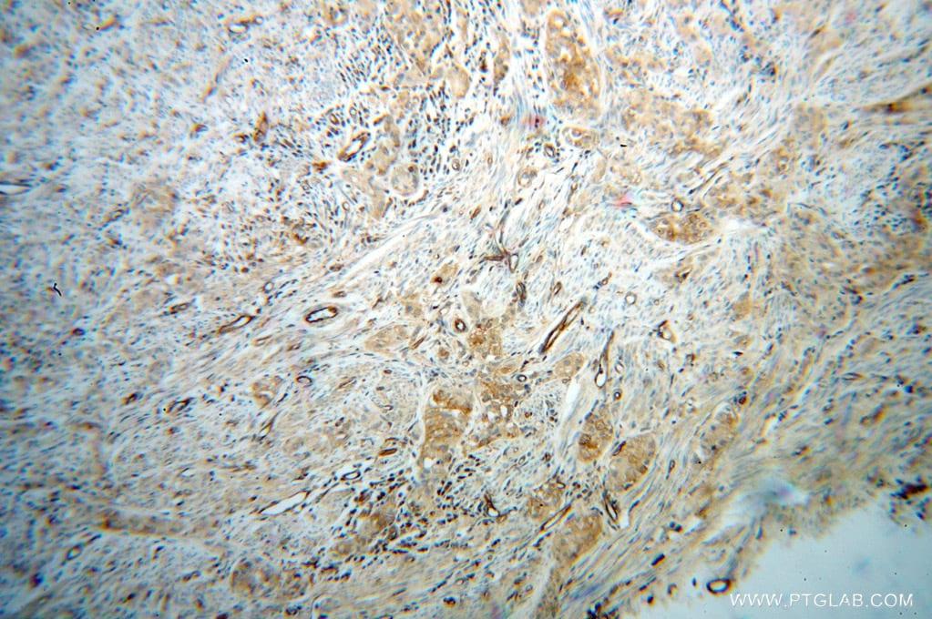 HRH1 Antibody in Immunohistochemistry (Paraffin) (IHC (P))