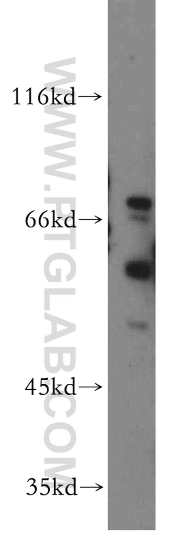 HRH2 Antibody in Western Blot (WB)