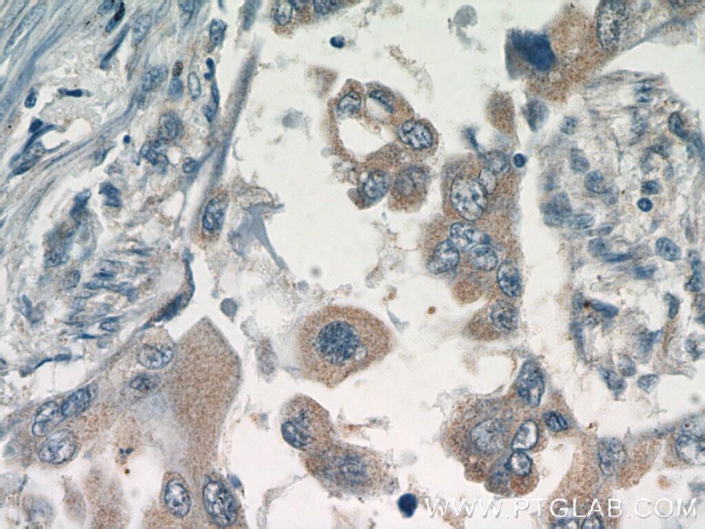 GSK3A Antibody in Immunohistochemistry (Paraffin) (IHC (P))
