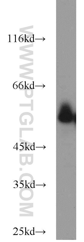 CYP51A1 Antibody in Western Blot (WB)