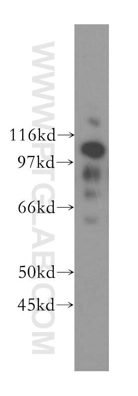 NNT Antibody in Western Blot (WB)
