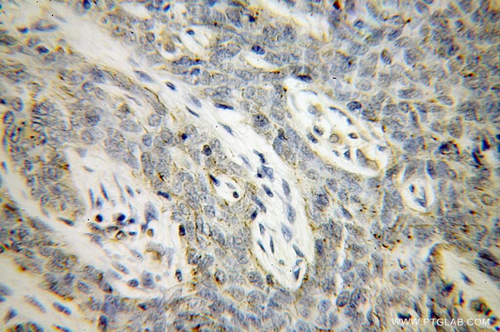 VASP Antibody in Immunohistochemistry (Paraffin) (IHC (P))