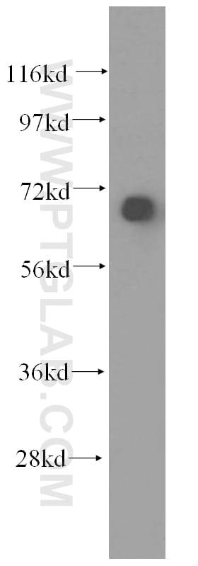 SYVN1 Antibody in Western Blot (WB)