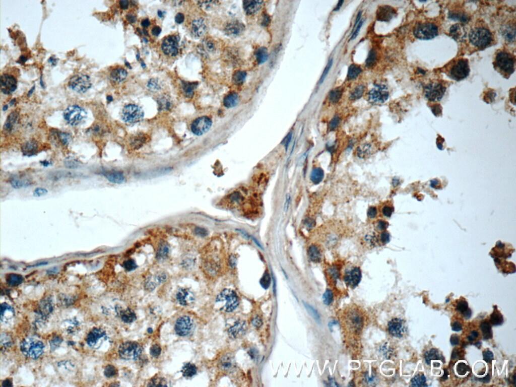 Cryptochrome 1 Antibody in Immunohistochemistry (Paraffin) (IHC (P))