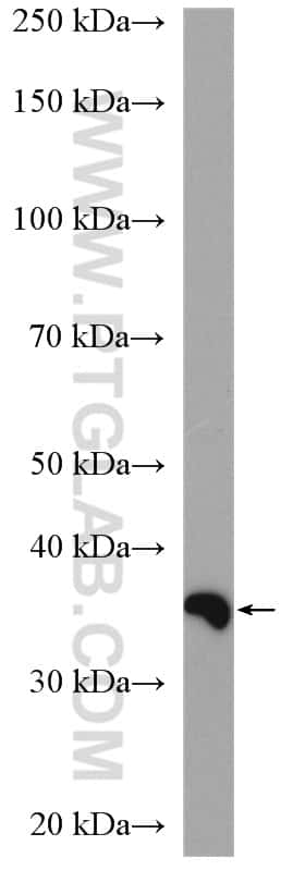 PPP2CA Antibody in Western Blot (WB)