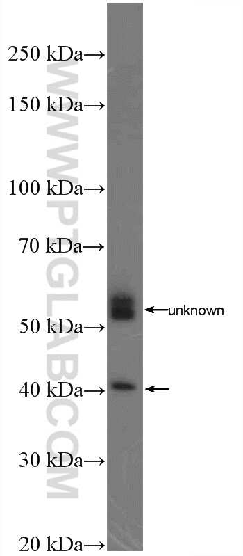 TREM2 Antibody in Western Blot (WB)