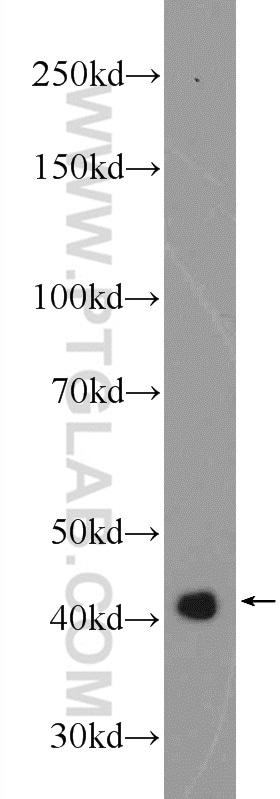 ATX3/ATXN3 Antibody in Western Blot (WB)