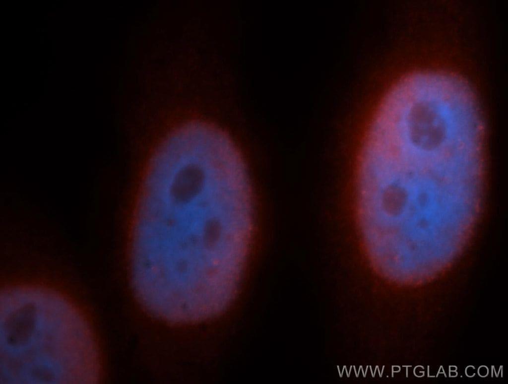 SNRPB2 Antibody in Immunofluorescence (IF)