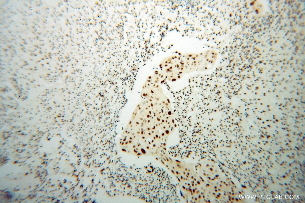 SNRPB2 Antibody in Immunohistochemistry (Paraffin) (IHC (P))