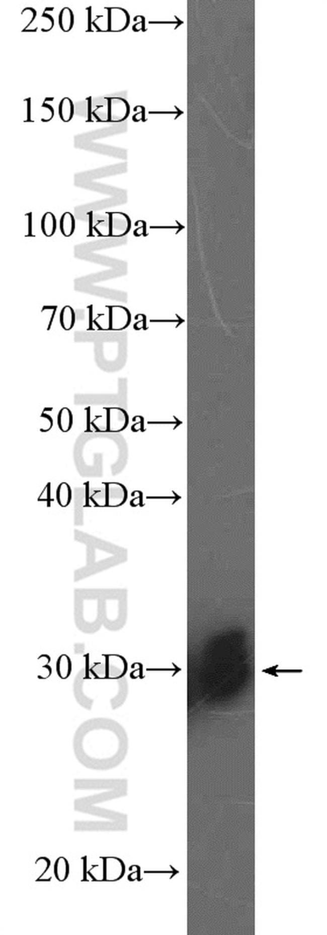 SNRPB2 Antibody in Western Blot (WB)