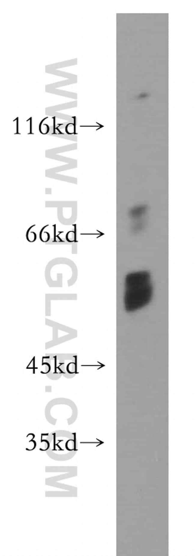 Choline kinase alpha Antibody in Western Blot (WB)