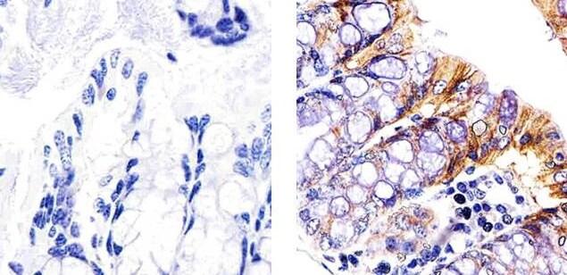 STAT5 beta Antibody in Immunohistochemistry (Paraffin) (IHC (P))