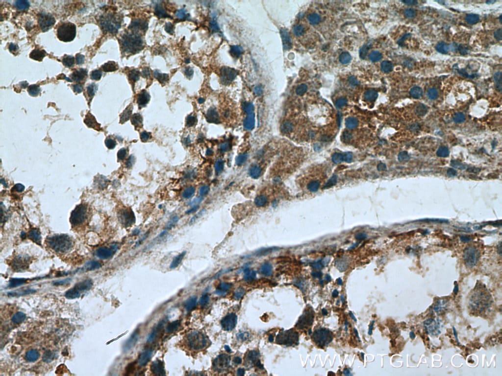 Proenkephalin-A Antibody in Immunohistochemistry (Paraffin) (IHC (P))