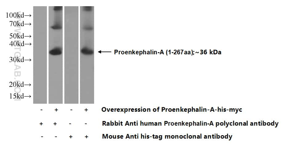 Proenkephalin-A Antibody in Western Blot (WB)