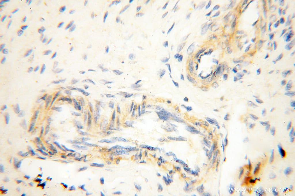 P2RX4 Antibody in Immunohistochemistry (Paraffin) (IHC (P))