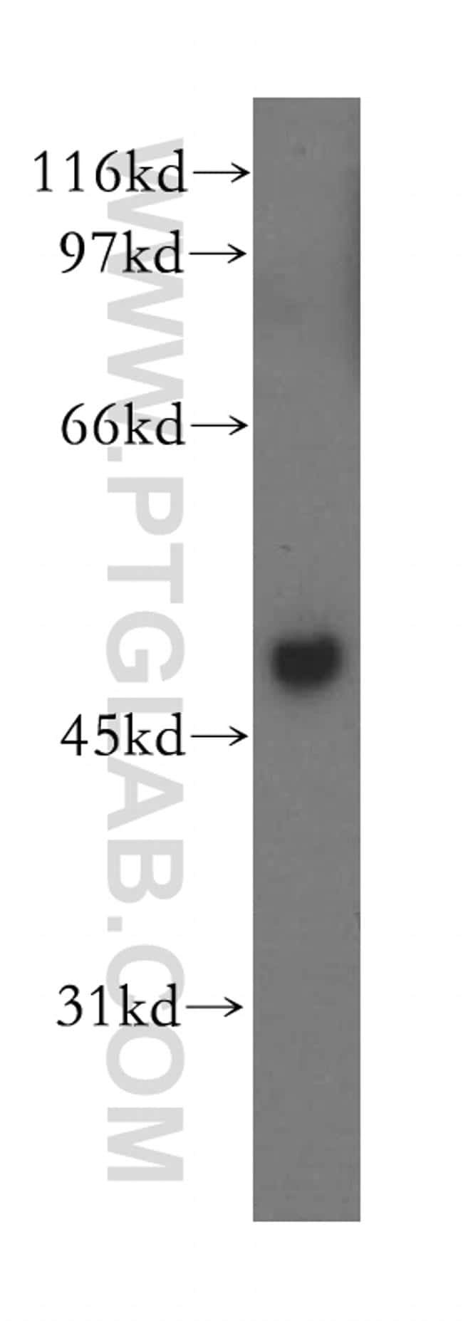 MSY2 Antibody in Western Blot (WB)