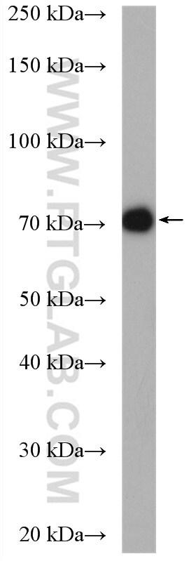 UBQLN3 Antibody in Western Blot (WB)