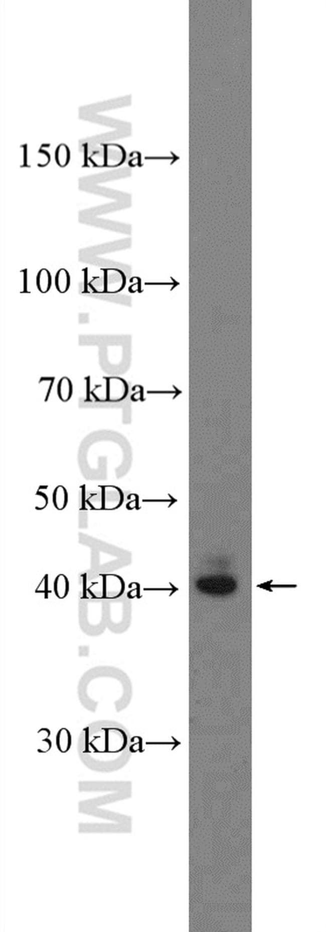 SIRT6 Antibody in Western Blot (WB)