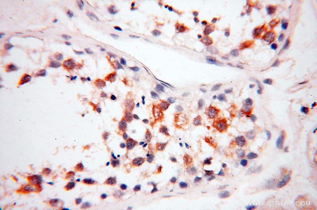 FKBP6 Antibody in Immunohistochemistry (Paraffin) (IHC (P))