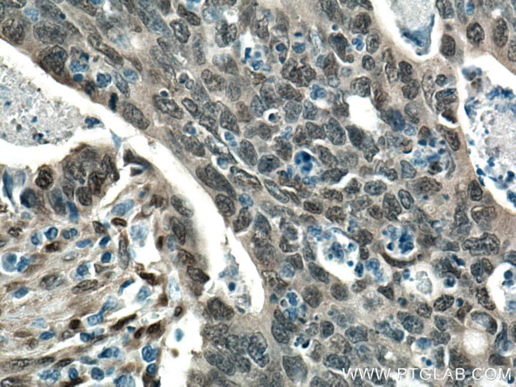 YAP1 Antibody in Immunohistochemistry (Paraffin) (IHC (P))