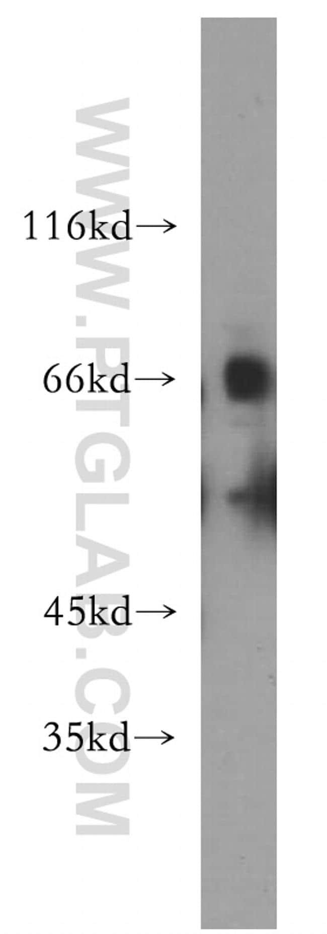 SLC22A2 Antibody in Western Blot (WB)