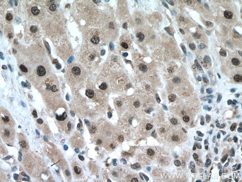 FBXO22 Antibody in Immunohistochemistry (Paraffin) (IHC (P))