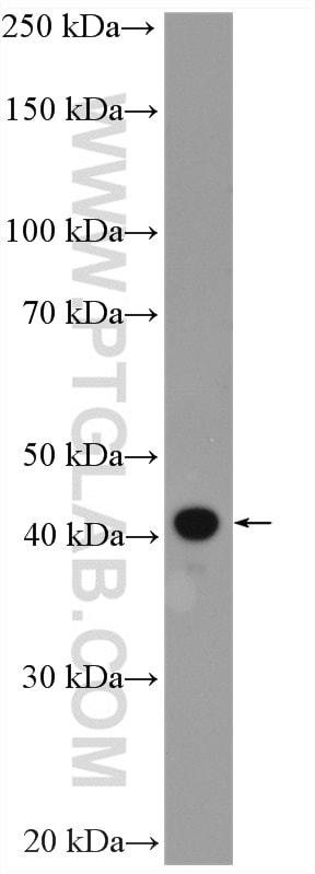 FBXO22 Antibody in Western Blot (WB)