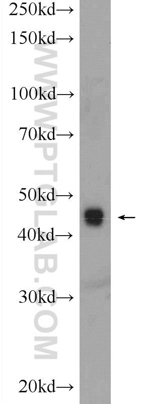 TOB2 Antibody in Western Blot (WB)