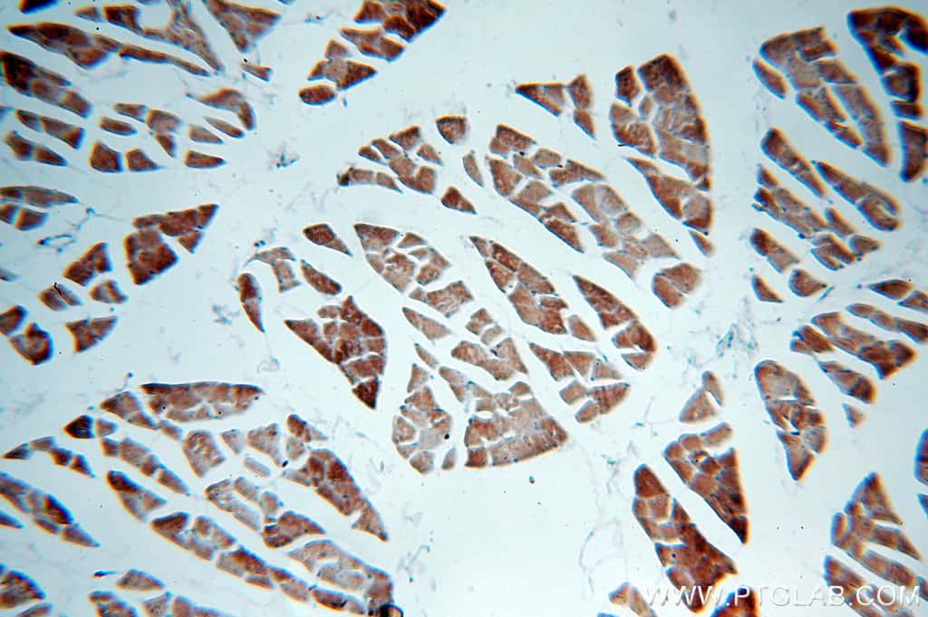 MLXIP Antibody in Immunohistochemistry (Paraffin) (IHC (P))