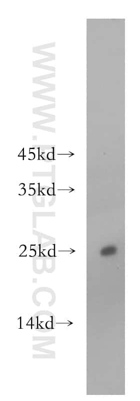 ADAT2 Antibody in Western Blot (WB)