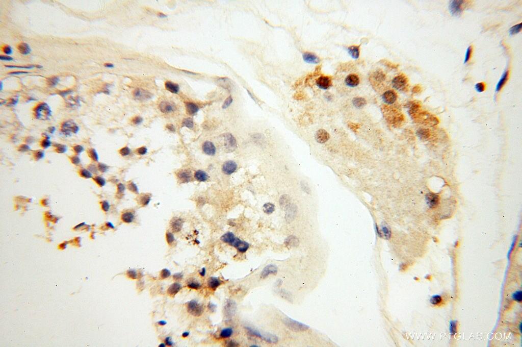 GMFG Antibody in Immunohistochemistry (Paraffin) (IHC (P))